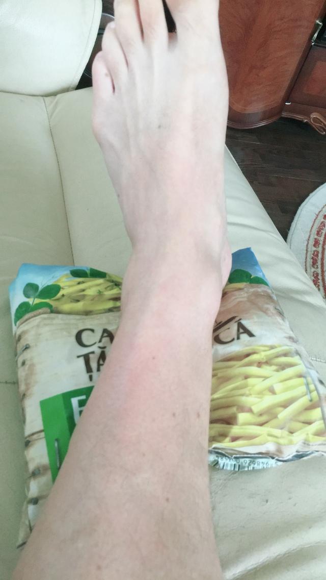 Fixing Achilles Pain